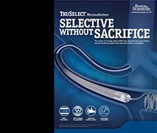 Truselect Brochure