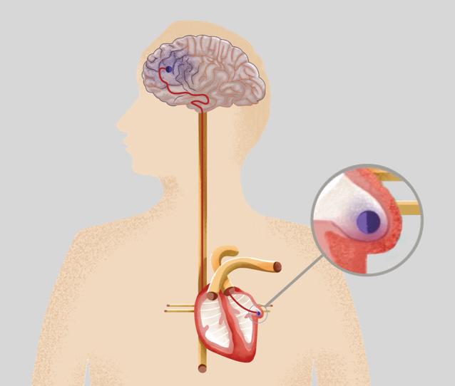 illustration of atrial fibrillation