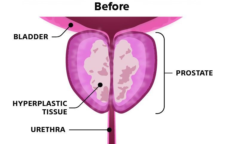 Before rezum procedure