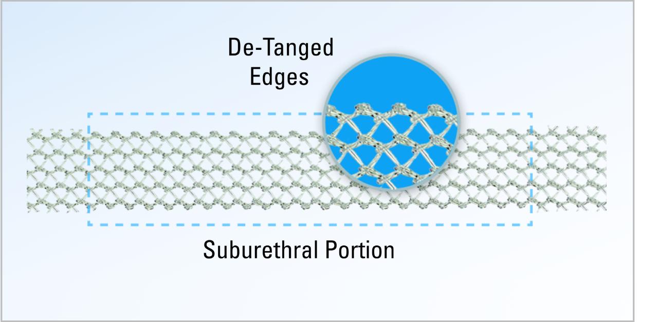 Mesh close up, displaying de-tangled edges on suburethral portion.