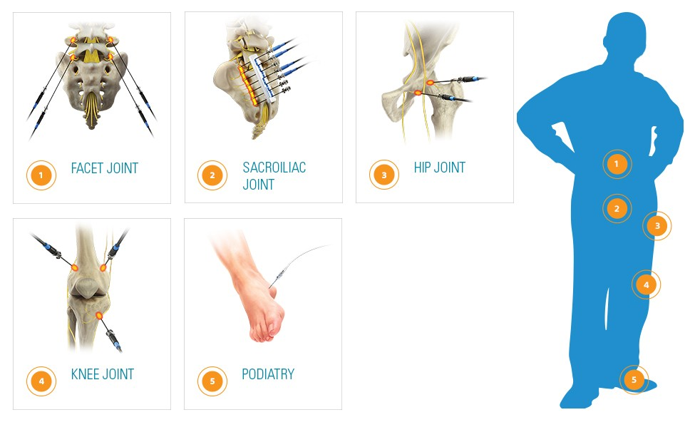 Graphic showing five treatment areas for RF Generator. Facet Joint. Sacroiliac joint. Hip Joint. Knee Joint. Podiatry.