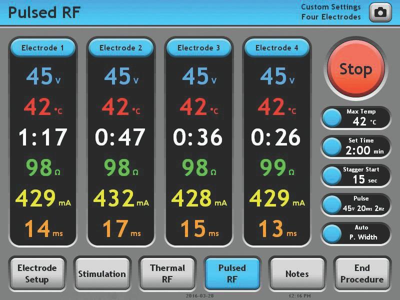 Pulsed RF  Screen