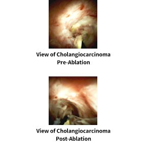 Pre and Post Ablation views of Cholangiocarcinoma