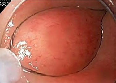 Example of Round Shape Resection