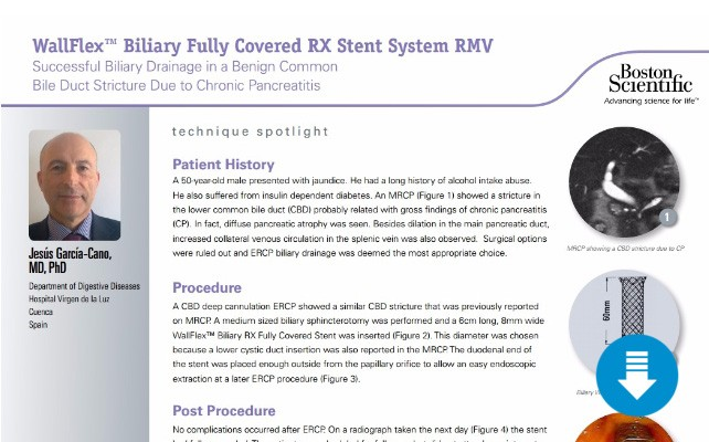 Endoscopic-Management-of-a-Benign-Biliary-Stricture