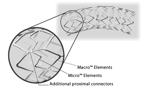 Express SD features a patented Tandem Architecture™ Stent Design