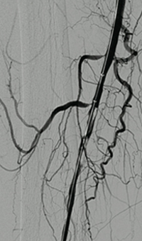 Thrombectomy of Occluded SFA - thrombus removed