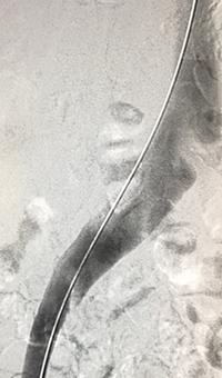 ZelanteDVT™  Mechanical Thrombectomy runtime 415 seconds