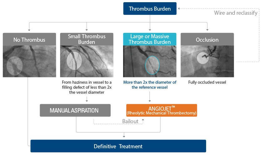 AngioJet mechanical thrombectomy to treat burden