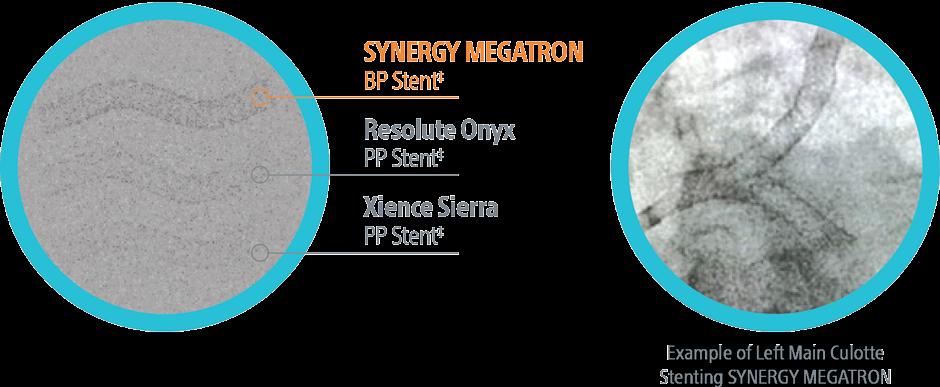 SYNERGY MEGATRON Maximum Visibility