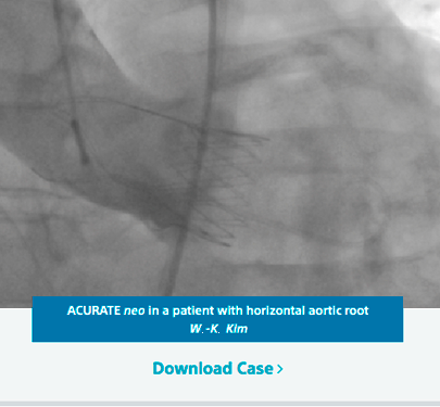 ACURATE Neo is in a patient with horizontal aortic root