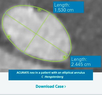 ACURATE neo in a patient with an elliptical annulus