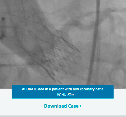 ACURATE neo in a patient with low coronary ostia