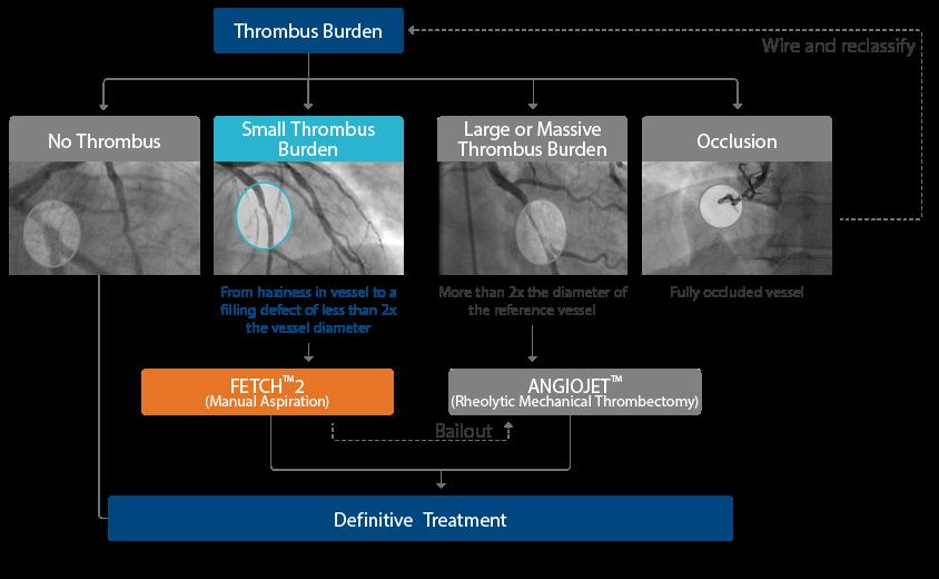 Catéter de aspiración Fetch2 para trombectomía