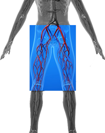 La trombosis venosa profunda se puede producir en cualquier parte, pero a menudo se asocia a las venas profundas que transportan sangre hacia las piernas, los muslos y la pelvis