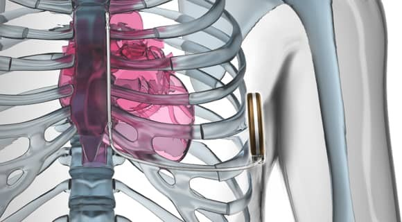 Diagram of a subcutaneous implantable defibrillator