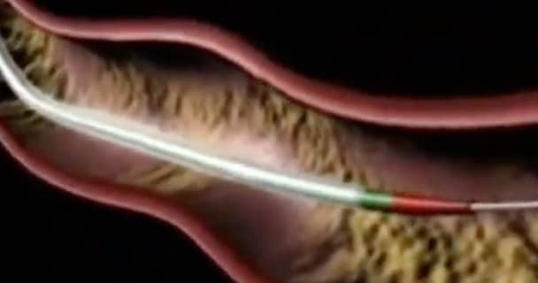 Animation screenshot of a cardiovascular procedure