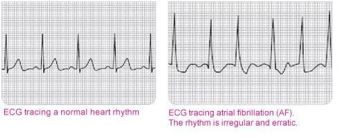 ECG tracing a normal heart rhythm - ECG tracing atrial fibrilations (AF). The rhytm is irregular and erratic.