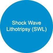 Litotripsia por onda de choque (SWL)