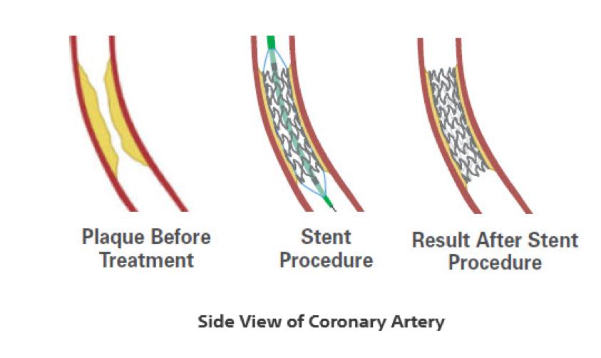 Vista lateral da artéria coronária