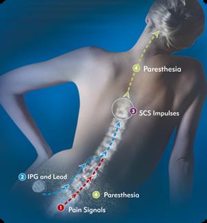 Dor Crônica - Estimulação da Medula Espinhal