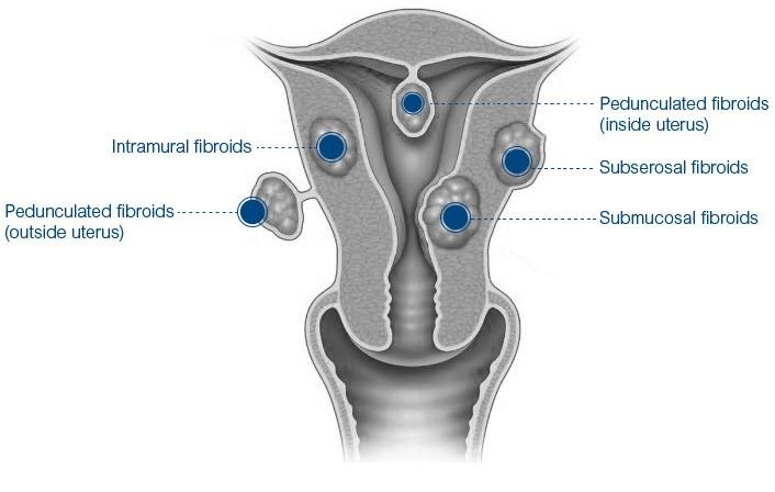 Miomas Anatomia