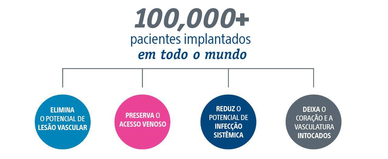 67,000+ patients implanted worldwide