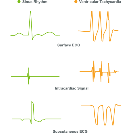 ECG / EKG of subcutaneous signal