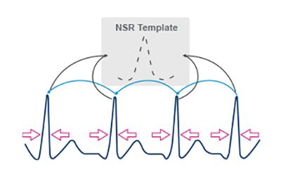 NSR Template