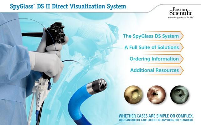 SpyGlass DS System ebrochure