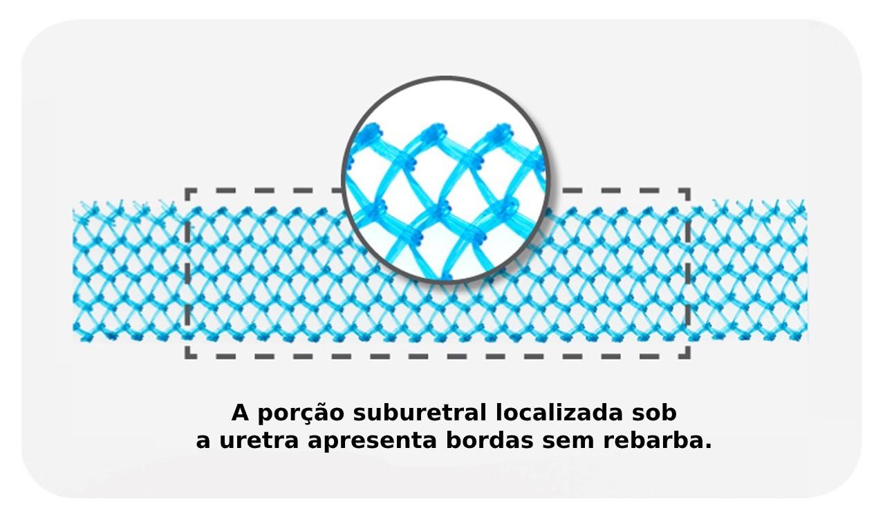 A tela azul Advantage® é uma material de polipropileno